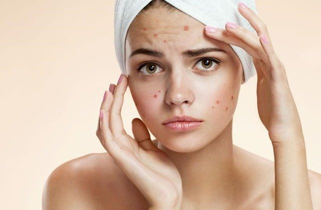 Congested Skin- Causes, Symptoms and Many More